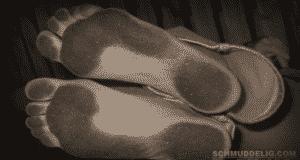 Schmutzige Füße mit dicker Hornhaut.